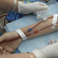 Only Twenty Percent of Dialysis Patients Receive Proper Care