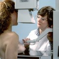 WHO Changes Age Recommendations for Mammograms