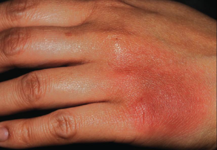 dermatitis on top of hands - photo #46