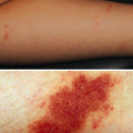 7-Year-Old Girl with Asymptomatic Rashes on Legs