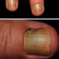 54-Year-Old Male With Yellowing of Fingernails