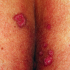 45-Year-Old Male with Lesions on Superior Gluteal Cleft