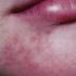 6-Year-Old Girl with Bumpy Rash on Chin