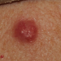 80-Year-Old Female with Persistent Red Bump on Back