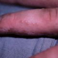 11-Year-Old Boy with Itchy Bumps on Sides of Fingers