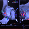 F.I.R.M. Ablation Improves Outcomes in Atrial Fibrillation Treatments