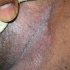 40-Year-Old Male with Recurrent Erythematous Rash