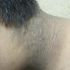 13-Year-Old Boy with Hyperpigmented Rash