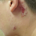 18-Year-Old Male with Rash on Back of Neck