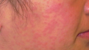 19-Year-Old Female with Rash Spreading to Extremities - The