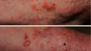 35-Year-Old Male with Itchy Rash on Feet and Ankles
