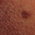 31-Year-Old Female with Asymptomatic Mole on Vulva Exterior