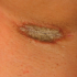 40-Year-Old Female with Scaly Eruptions on Axillae