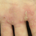 13-Year-Old Girl with Vesicular Sores on Palms