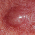 59-Year-Old Male with Erythematous Plaques on Cheeks
