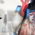 Say Goodbye to Solving 3D Medical Problems on 2D Screens