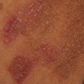 57-Year-Old Female with Bilateral Inguinal Rash
