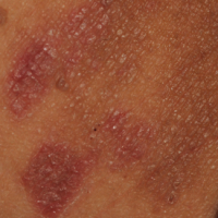 57 Year Old Female With Bilateral Inguinal Rash The Doctor S Channel