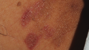 Click to View 57-Year-Old Female with Bilateral Inguinal Rash