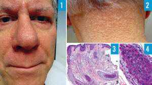 Click to View 70-Year-Old Male With Papular Eruption and Madarosis