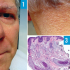 70-Year-Old Male With Papular Eruption and Madarosis