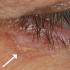 62-Year-Old Male with Asymptomatic Lesion On Eyelid Area