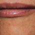 40-Year-Old Female with Perioral Rash Around Mouth