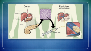 Minimally Invasive Procedure Mimics Pancreas Transplantation