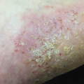 50-Year-Old Male with Asymptomatic Pustules on Palms and Feet