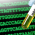 Genomic Test May Predict Which Patients Would Benefit Most from Checkpoint Inhibition