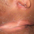 5-Month-Old Male with Scaly Rash