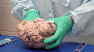 Evaluation of Chronic Traumatic Encephalopathy in Football Players