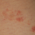 22-Year-Old Female with Rash on Legs