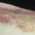 40-Year-Old Female with Inframammary Rash