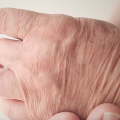 Illustration Test May Spot Parkinson's Before Motor Symptoms Onset
