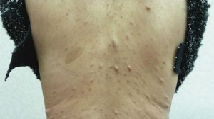 54-Year-Old Female with Brownish Spots and Nodules on Back