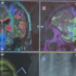 First CTE Diagnosis During Life Confirmed After Patient's Death