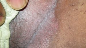 40-Year-Old Male with Erythematous Rash