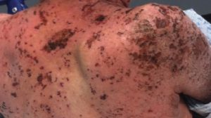 73-Year-Old Female with Diffuse Rash