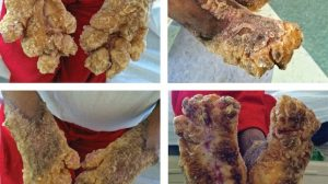 10-Year-Old Male with Severe Hyperkeratosis on Hands