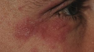 43-Year-Old Male with Asymptomatic Papules on Both Eyelids