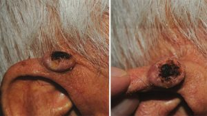 88-Year-Old Male With Lesion On Right Pinna
