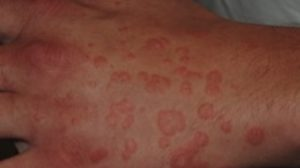 18-Year-Old Male with Widespread Targetoid Rash