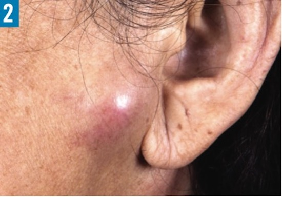 69-Year-Old Female with Pruritic Rash On Eyebrows and