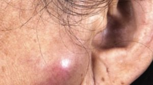 69-Year-Old Female with Pruritic Rash On Eyebrows and Lymphadenopathy On Face and Neck