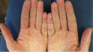 16-Year-Old Female with Excessive Sweating on Palms