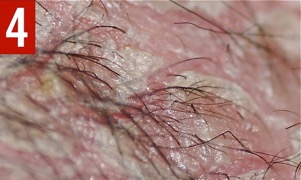 Figure 4. Trichoscopic examination of the scalp showed trichorrhexis invaginata.
