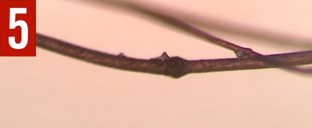 Microscopic examination of the scalp hair showed trichorrhexis invaginata