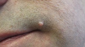 34-Year-Old Male with Papule on Left Side of Face
