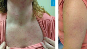 37-Year-Old Female with Pruritic Rash on Upper Body